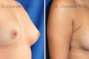 breast-augmentation-beverly-hills25