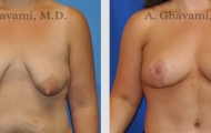 breast-lift-beverly-hills-1