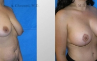 breast-lift-beverly-hills-2