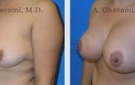 breast-lift-beverly-hills-3