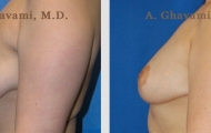 breast-reduction-beverly-hills-3