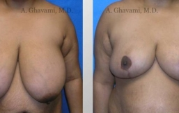 breast-reduction-beverly-hills-1