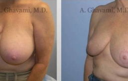 breast-reduction-beverly-hills-2