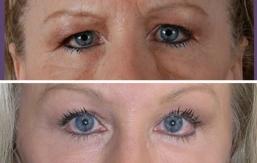 eyelid-rejuvenation-brow-lift-beverly-hills-1