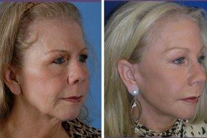 eyelid-rejuvenation-brow-lift-beverly-hills-2