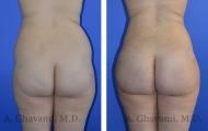 butt-augmentation-p01-01