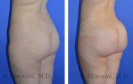 butt-augmentation-p01-02