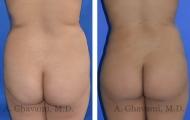 butt-augmentation-p02-01