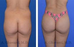 butt-augmentation-p03-01