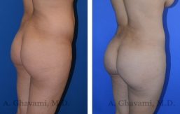 butt-augmentation-p03-02