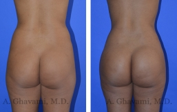 butt-augmentation-p04-01