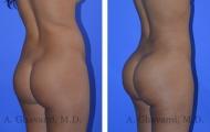 butt-augmentation-p04-02