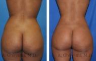 butt-augmentation-p05-01