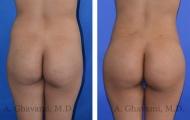 butt-augmentation-p06-01