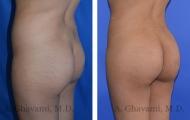 butt-augmentation-p06-02
