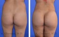 butt-augmentation-p07-01