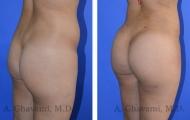 butt-augmentation-p07-02