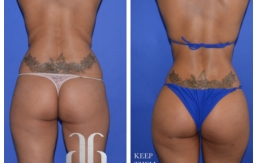 Buttock-Augmentation-p32-01
