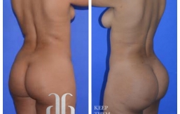 Buttock-Augmentation-p33-01