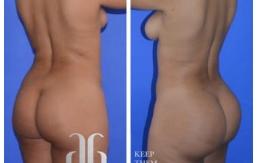 Buttock-Augmentation-p33-01