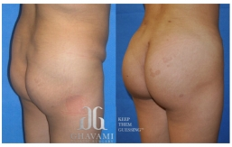 Buttock Augmentation B&A