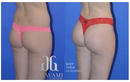 Buttock Augmentation B&A