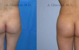 buttock-augmentation-beverly-hills-1