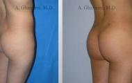 buttock-augmentation-beverly-hills-4