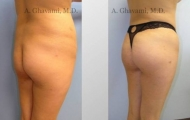 buttock-augmentation-beverly-hills-1