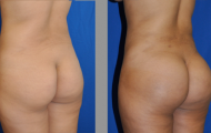 buttock-augmentation-beverly-hills-5