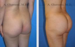 buttock-augmentation-beverly-hills-2