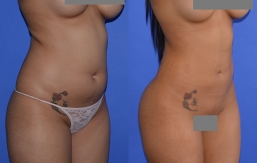 Buttock Augmentation Patient 25