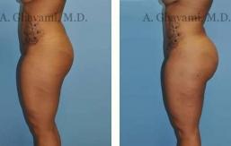 buttock-augmentation-beverly-hills-3