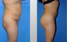 buttock-augmentation-beverly-hills-5