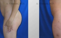 buttock-augmentation-beverly-hills-3