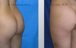 buttock-augmentation-beverly-hills-4