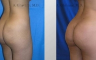 buttock-augmentation-beverly-hills-2