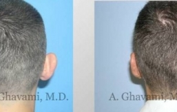 ear-pinning-otoplasty-beverly hills-1