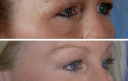 eyelid-lift-beverly hills-2