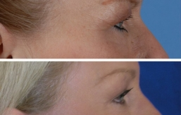 eyelid-lift-beverly hills-3