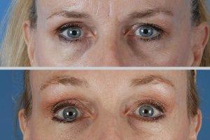 eyelid-lift-beverly hills-1