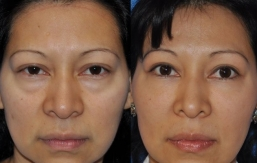 eyelid-lift-beverly hills-1