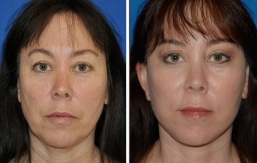 facelift-beverly-hills-1