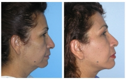 facelift-beverly-hills-3