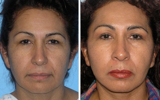 Have Beverly hills facial reconstructive surgery matchless