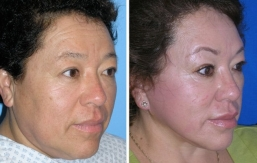 facelift-beverly-hills-2