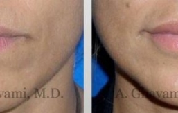 lip-augmentation-beverly-hills-2