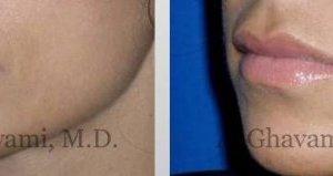 lip-augmentation-beverly-hills-1