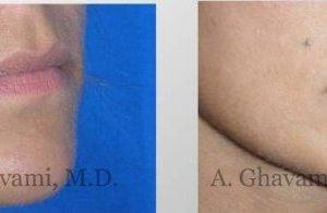 lip-augmentation-beverly-hills-3