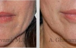 lip-augmentation-beverly-hills-1